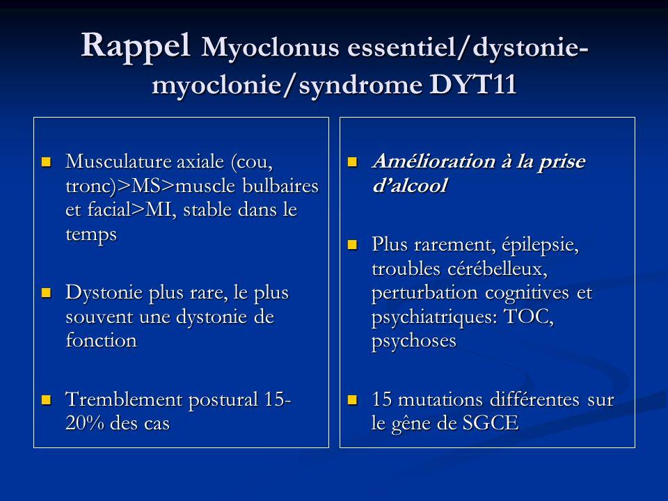 Rappel Myoclonus essentiel/dystonie- myoclonie/syndrome DYT11 Musculature axiale (cou, tronc)>MS>muscle bulbaires et facial>MI, stable dans le temps M