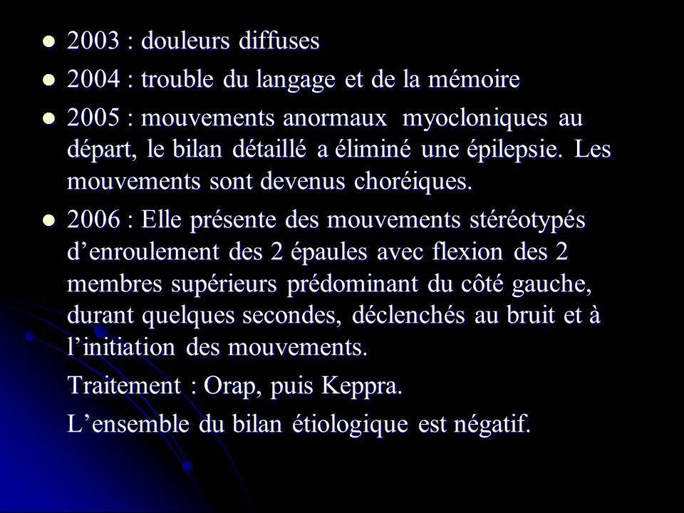 2003 : douleurs diffuses 2003 : douleurs diffuses 2004 : trouble du langage et de la mémoire 2004 : trouble du langage et de la mémoire 2005 : mouvements anormaux myocloniques au départ, le bilan détaillé a éliminé une épilepsie.
