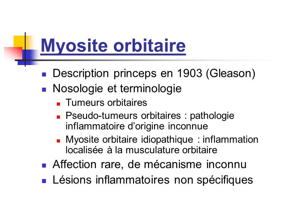 Myosite orbitaire Description princeps en 1903 (Gleason) Nosologie et terminologie Tumeurs orbitaires Pseudo-tumeurs orbitaires : pathologie inflammat