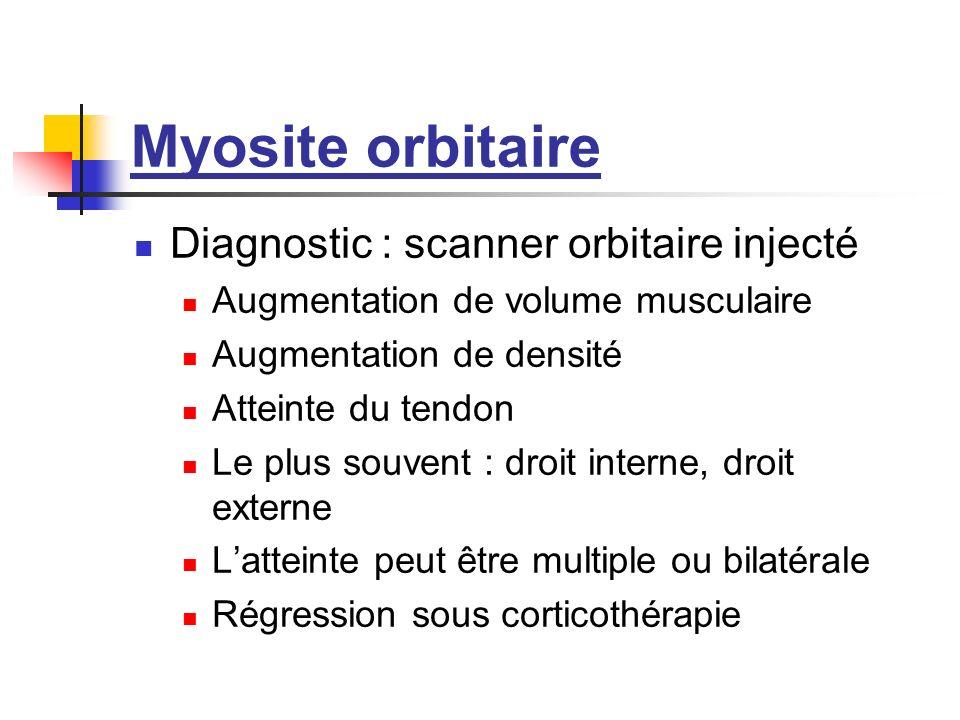 Myosite orbitaire Diagnostic : scanner orbitaire injecté Augmentation de volume musculaire Augmentation de densité Atteinte du tendon Le plus souvent