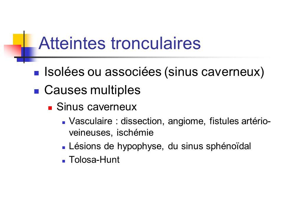 Atteintes tronculaires Isolées ou associées (sinus caverneux) Causes multiples Sinus caverneux Vasculaire : dissection, angiome, fistules artério- vei