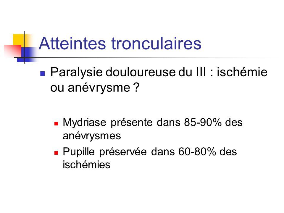Atteintes tronculaires Paralysie douloureuse du III : ischémie ou anévrysme ? Mydriase présente dans 85-90% des anévrysmes Pupille préservée dans 60-8