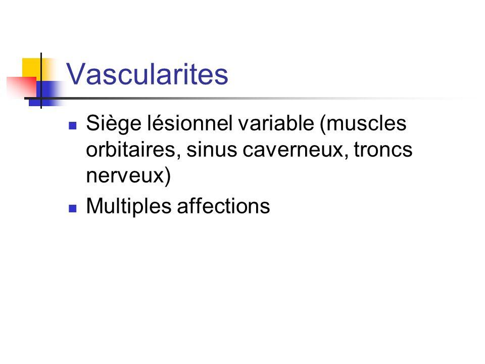 Vascularites Siège lésionnel variable (muscles orbitaires, sinus caverneux, troncs nerveux) Multiples affections