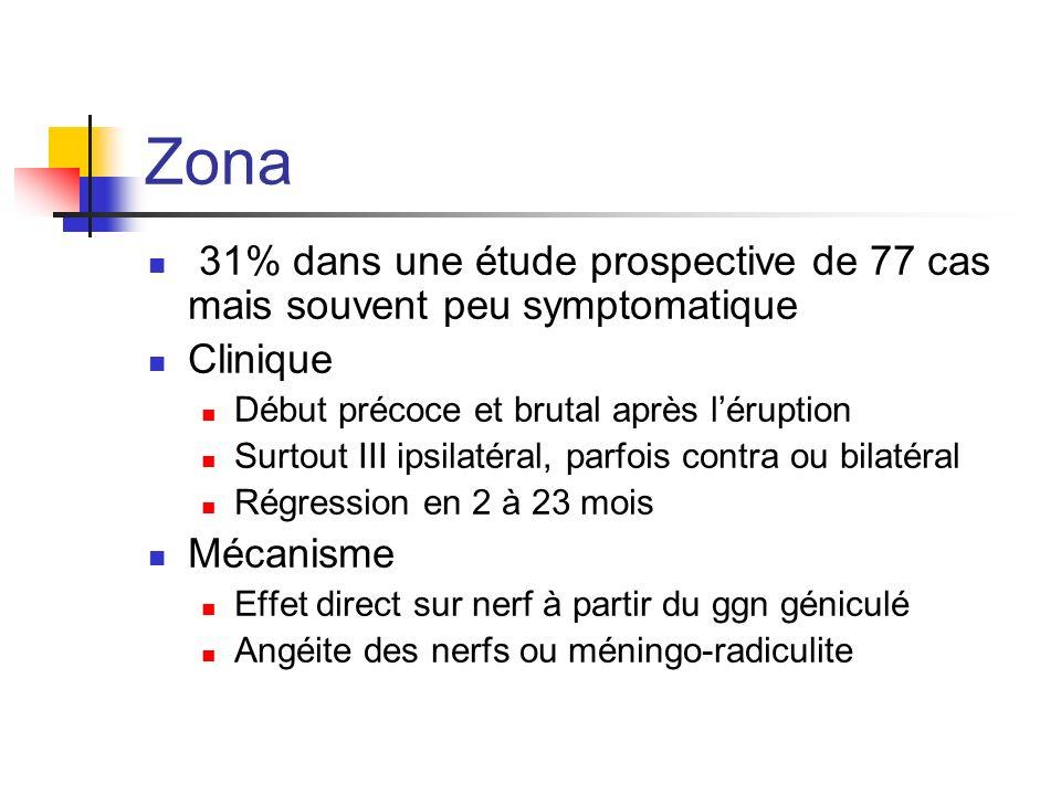 Zona 31% dans une étude prospective de 77 cas mais souvent peu symptomatique Clinique Début précoce et brutal après léruption Surtout III ipsilatéral,