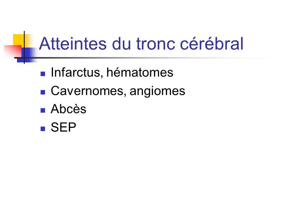 Atteintes du tronc cérébral Infarctus, hématomes Cavernomes, angiomes Abcès SEP