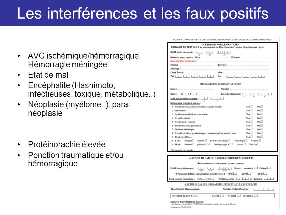 Les interférences et les faux positifs AVC ischémique/hémorragique, Hémorragie méningée Etat de mal Encéphalite (Hashimoto, infectieuses, toxique, mét