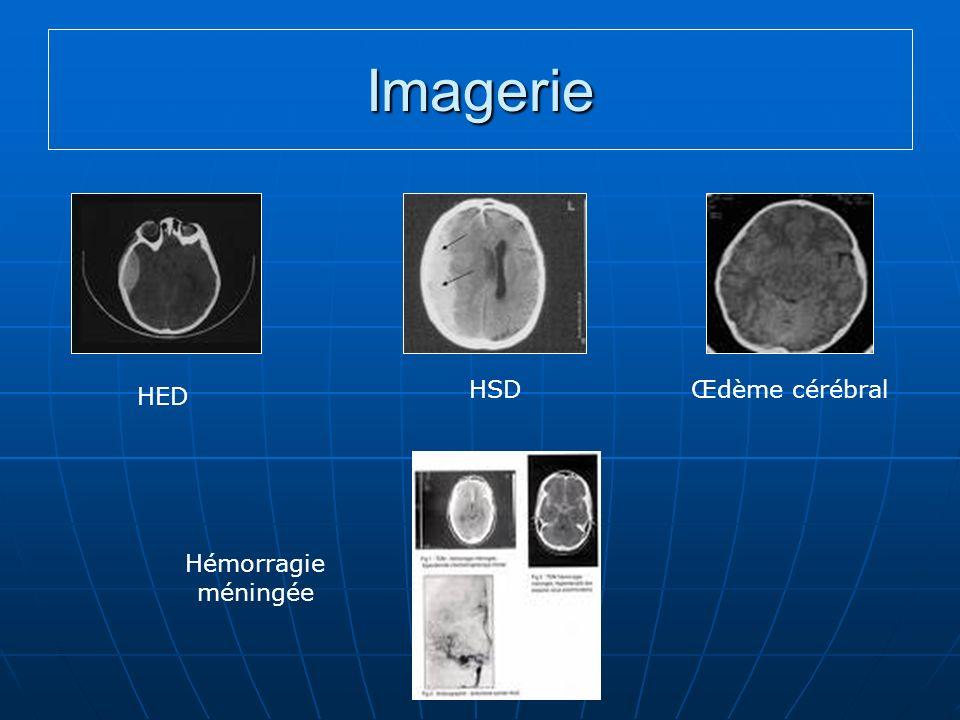 Imagerie HED HSDŒdème cérébral Hémorragie méningée