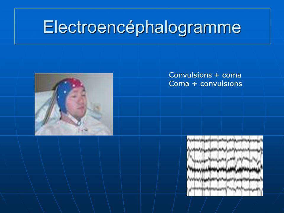 Electroencéphalogramme Convulsions + coma Coma + convulsions