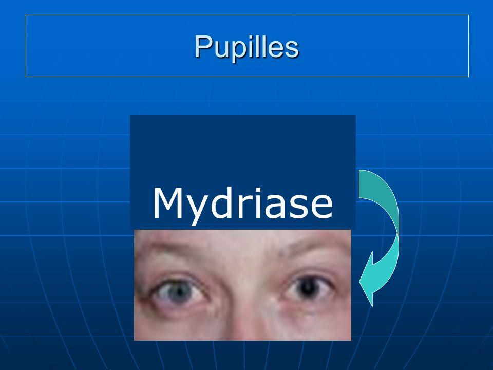 Pupilles AAAAAA Mydriase