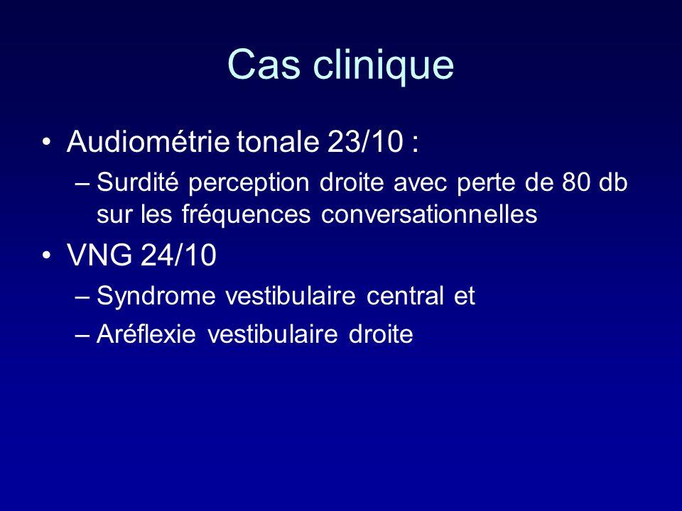 Cas clinique Audiométrie tonale 23/10 : –Surdité perception droite avec perte de 80 db sur les fréquences conversationnelles VNG 24/10 –Syndrome vestibulaire central et –Aréflexie vestibulaire droite