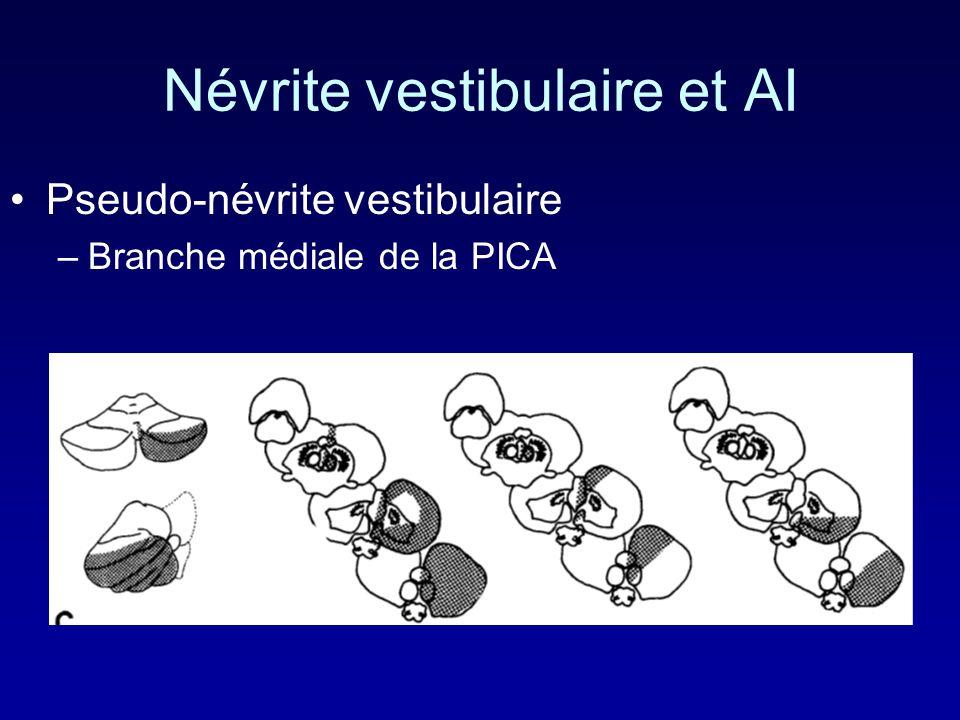 Névrite vestibulaire et AI Pseudo-névrite vestibulaire –Branche médiale de la PICA