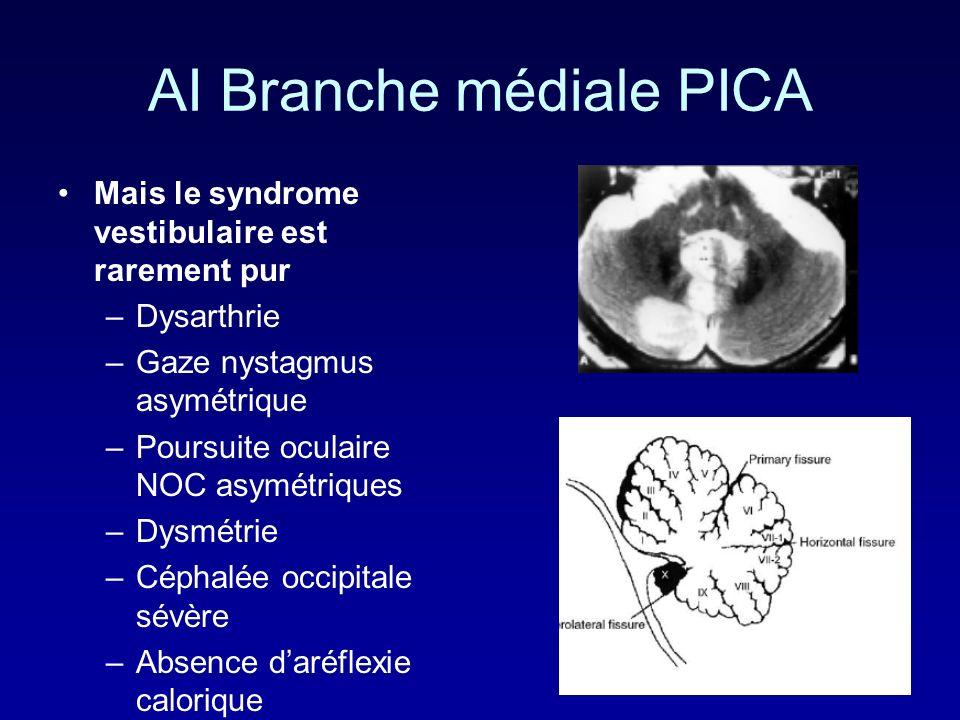 AI Branche médiale PICA Mais le syndrome vestibulaire est rarement pur –Dysarthrie –Gaze nystagmus asymétrique –Poursuite oculaire NOC asymétriques –Dysmétrie –Céphalée occipitale sévère –Absence daréflexie calorique