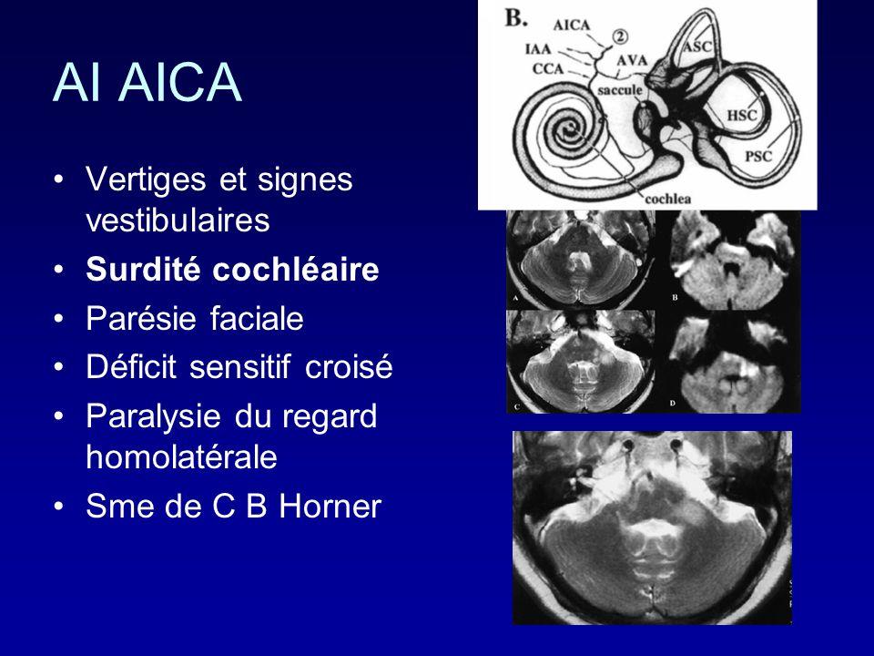 AI AICA Vertiges et signes vestibulaires Surdité cochléaire Parésie faciale Déficit sensitif croisé Paralysie du regard homolatérale Sme de C B Horner