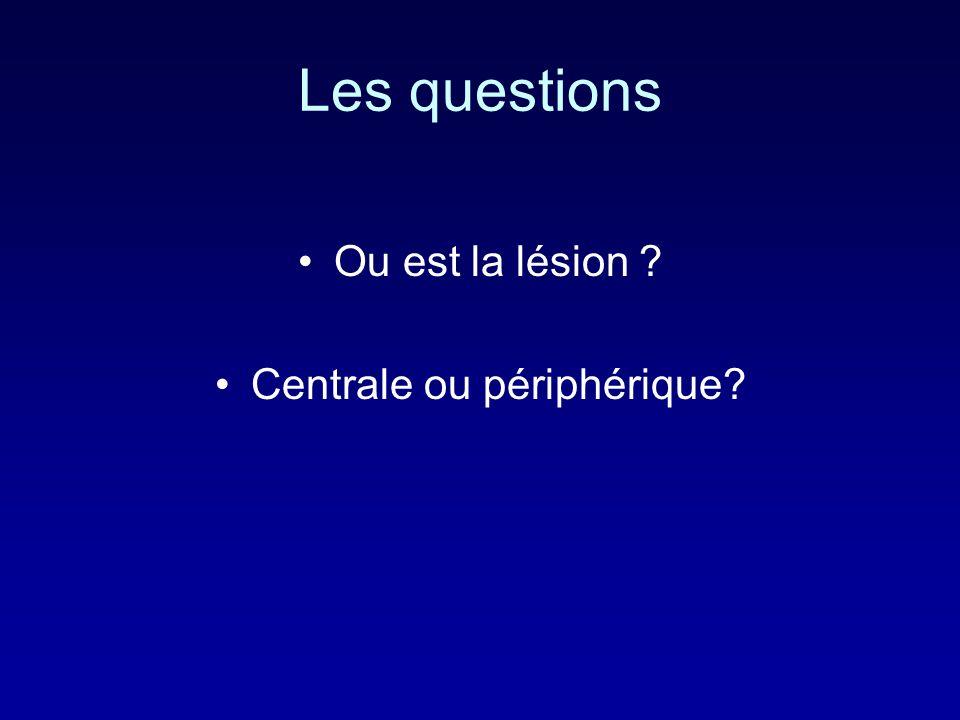 Les questions Ou est la lésion ? Centrale ou périphérique?