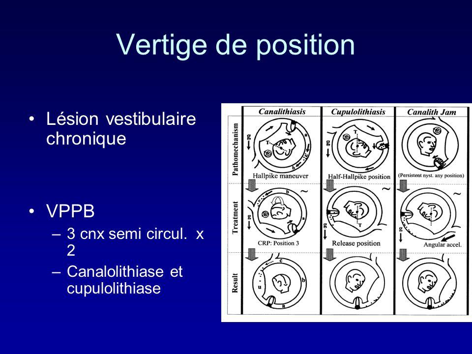 Vertige de position Lésion vestibulaire chronique VPPB –3 cnx semi circul. x 2 –Canalolithiase et cupulolithiase
