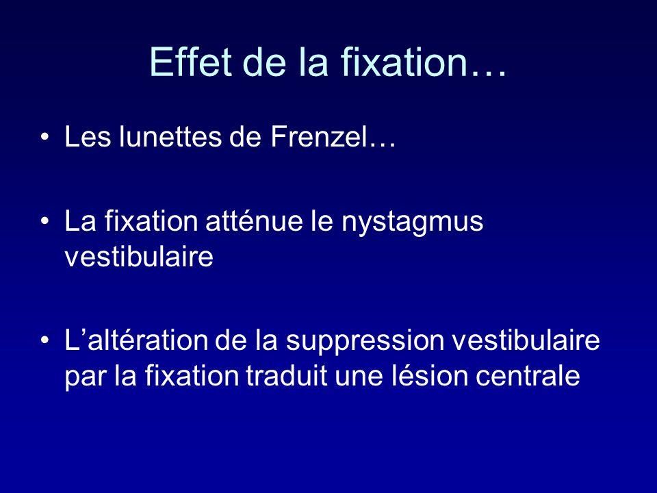 Effet de la fixation… Les lunettes de Frenzel… La fixation atténue le nystagmus vestibulaire Laltération de la suppression vestibulaire par la fixation traduit une lésion centrale