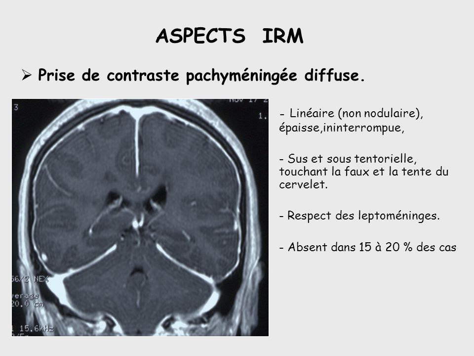 ASPECTS IRM Prise de contraste pachyméningée diffuse. - Linéaire (non nodulaire), épaisse,ininterrompue, - Sus et sous tentorielle, touchant la faux e