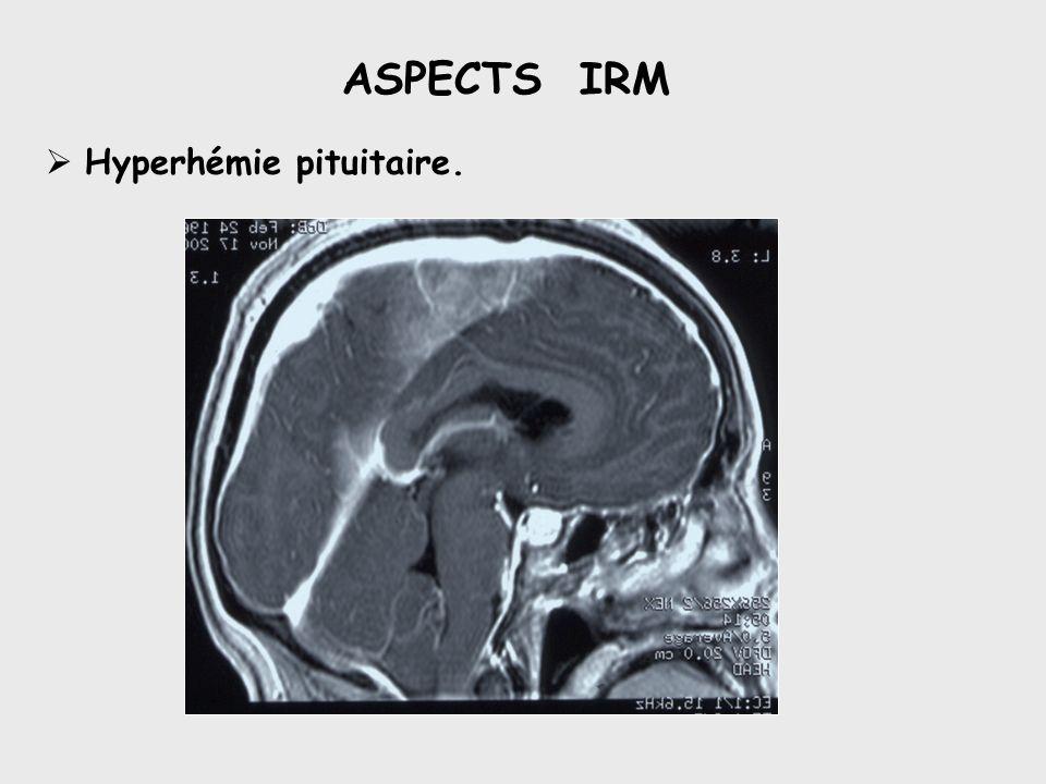ASPECTS IRM Hyperhémie pituitaire.