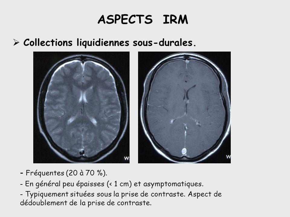 ASPECTS IRM Collections liquidiennes sous-durales. - Fréquentes (20 à 70 %). - En général peu épaisses (< 1 cm) et asymptomatiques. - Typiquement situ