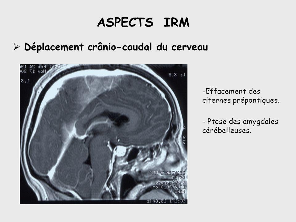 ASPECTS IRM Déplacement crânio-caudal du cerveau -Effacement des citernes prépontiques. - Ptose des amygdales cérébelleuses.