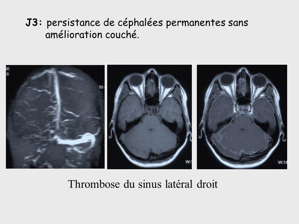 J3: persistance de céphalées permanentes sans amélioration couché. Thrombose du sinus latéral droit