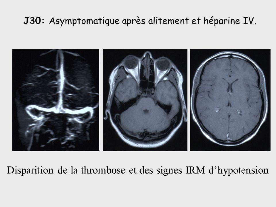 J30: Asymptomatique après alitement et héparine IV. Disparition de la thrombose et des signes IRM dhypotension
