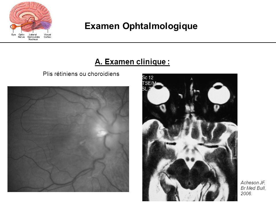 Examen Ophtalmologique A. Examen clinique : Plis rétiniens ou choroidiens Acheson JF, Br Med Bull, 2006.