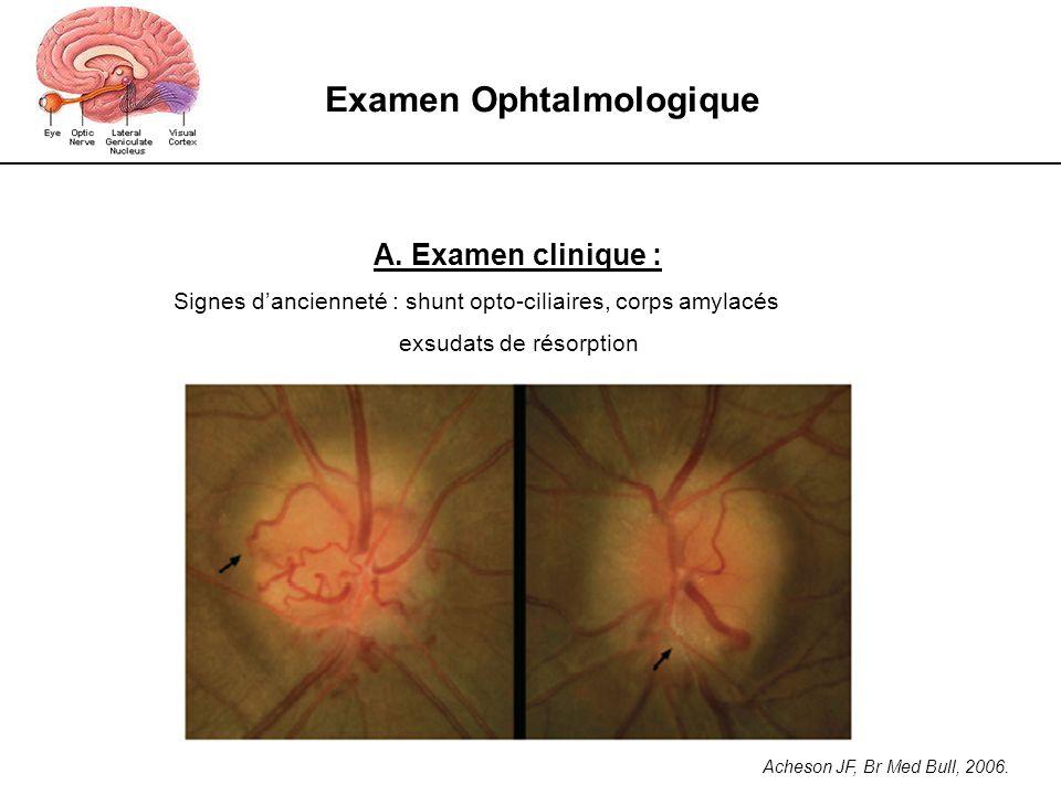 Examen Ophtalmologique A. Examen clinique : Signes dancienneté : shunt opto-ciliaires, corps amylacés exsudats de résorption Acheson JF, Br Med Bull,