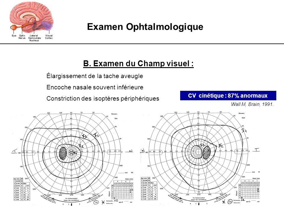 Examen Ophtalmologique B. Examen du Champ visuel : Élargissement de la tache aveugle Encoche nasale souvent inférieure Constriction des isoptères péri