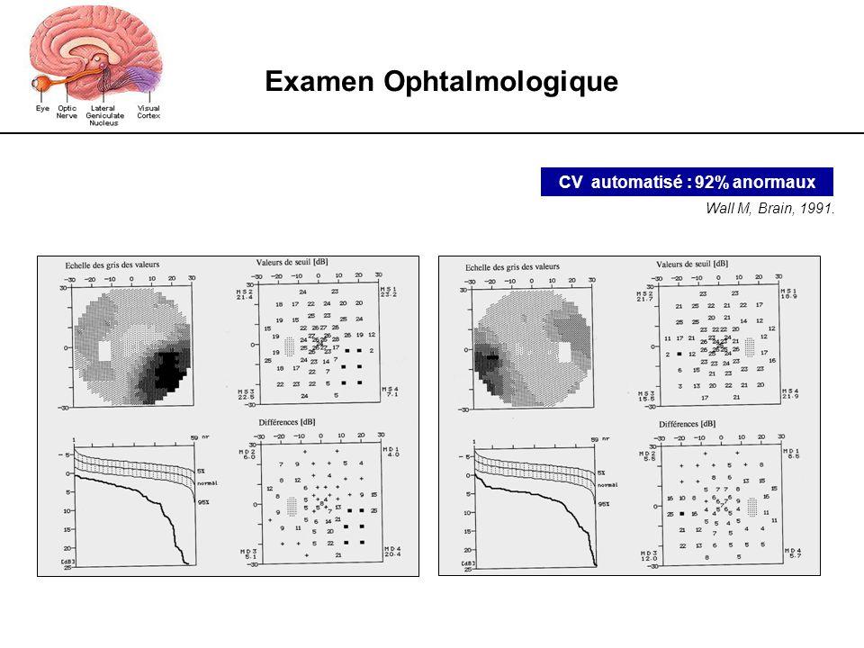 Examen Ophtalmologique CV automatisé : 92% anormaux Wall M, Brain, 1991.