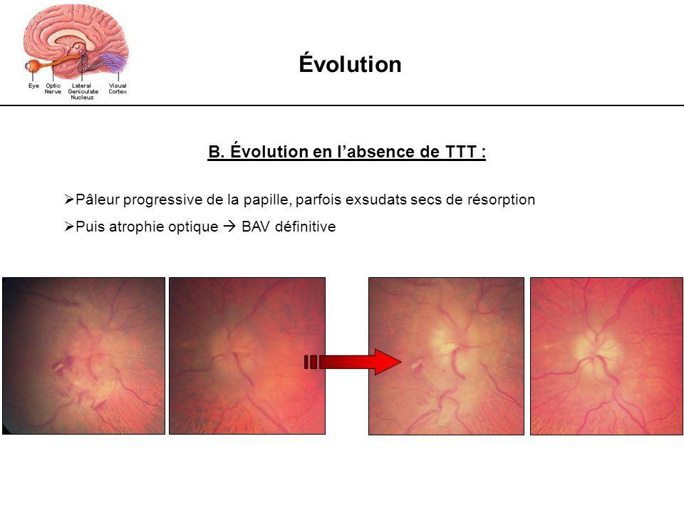 Évolution B. Évolution en labsence de TTT : Pâleur progressive de la papille, parfois exsudats secs de résorption Puis atrophie optique BAV définitive