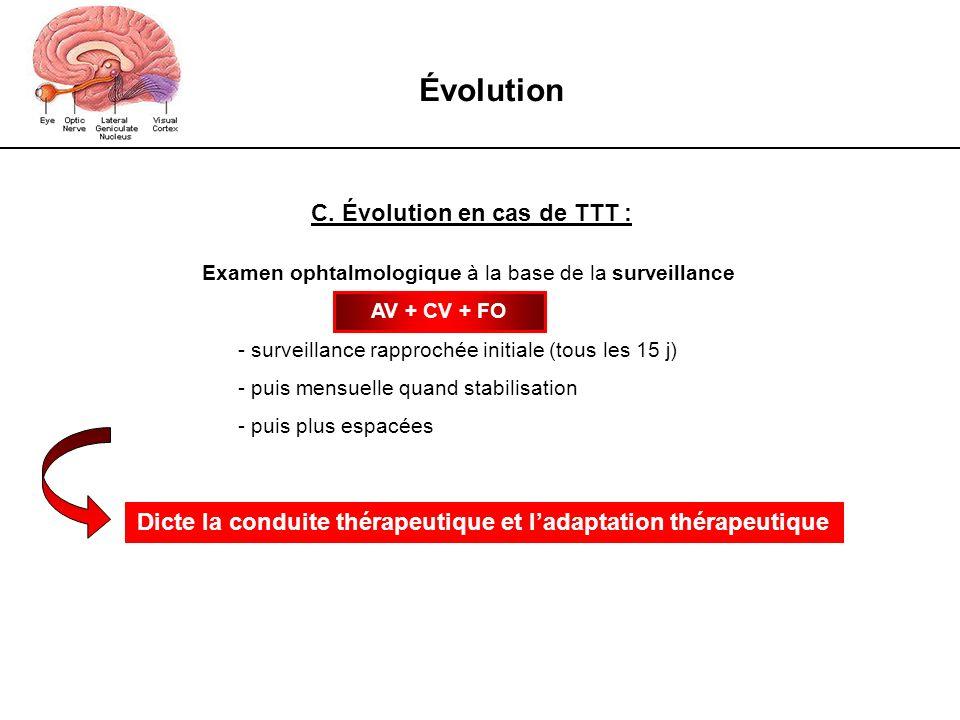 Évolution C. Évolution en cas de TTT : Examen ophtalmologique à la base de la surveillance - surveillance rapprochée initiale (tous les 15 j) - puis m