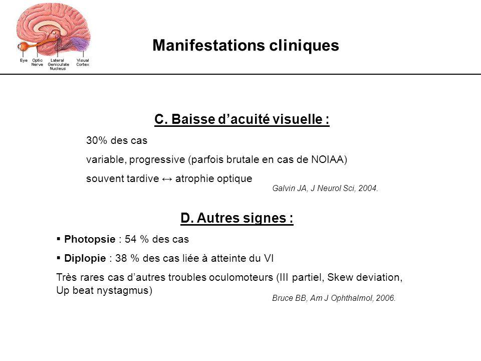 Manifestations cliniques C. Baisse dacuité visuelle : 30% des cas variable, progressive (parfois brutale en cas de NOIAA) souvent tardive atrophie opt
