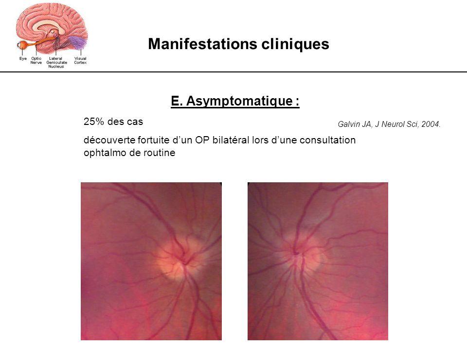 Manifestations cliniques E. Asymptomatique : 25% des cas découverte fortuite dun OP bilatéral lors dune consultation ophtalmo de routine Galvin JA, J