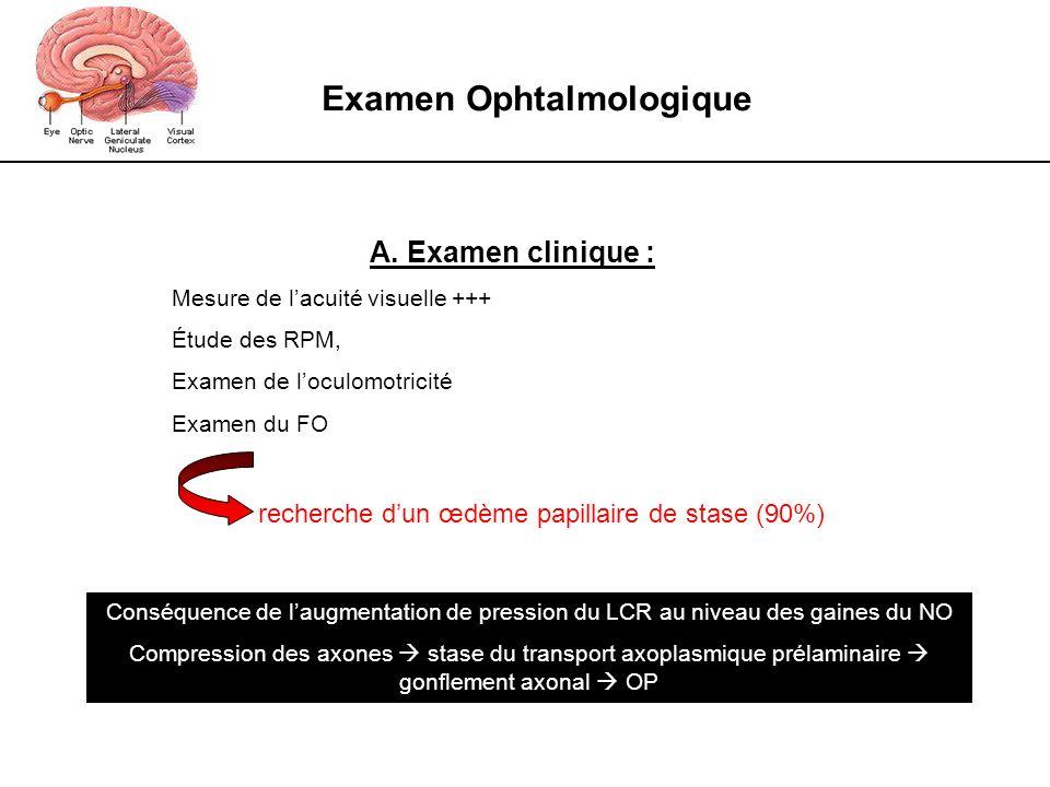 Examen Ophtalmologique A. Examen clinique : Mesure de lacuité visuelle +++ Étude des RPM, Examen de loculomotricité Examen du FO recherche dun œdème p