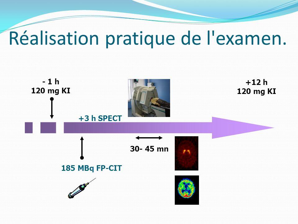 Réalisation pratique de l'examen. - 1 h 120 mg KI 185 MBq FP-CIT +12 h 120 mg KI +3 h SPECT 30- 45 mn