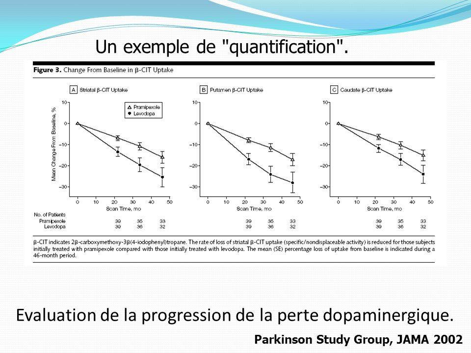 Evaluation de la progression de la perte dopaminergique. Parkinson Study Group, JAMA 2002 Un exemple de