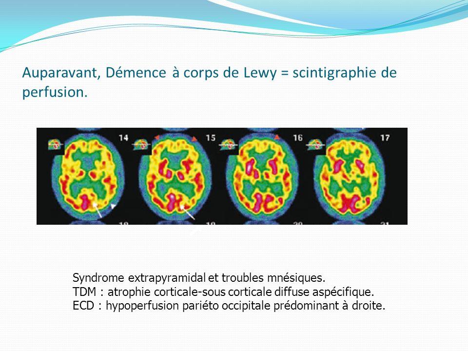 Auparavant, Démence à corps de Lewy = scintigraphie de perfusion. Syndrome extrapyramidal et troubles mnésiques. TDM : atrophie corticale-sous cortica