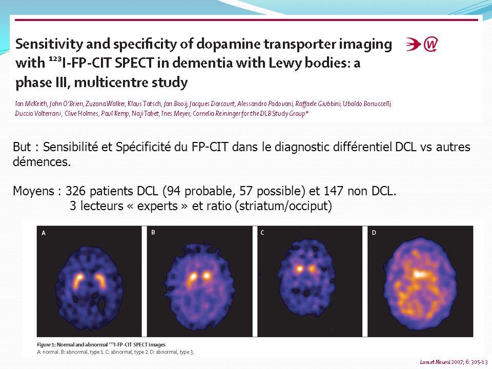 But : Sensibilité et Spécificité du FP-CIT dans le diagnostic différentiel DCL vs autres démences. Moyens : 326 patients DCL (94 probable, 57 possible