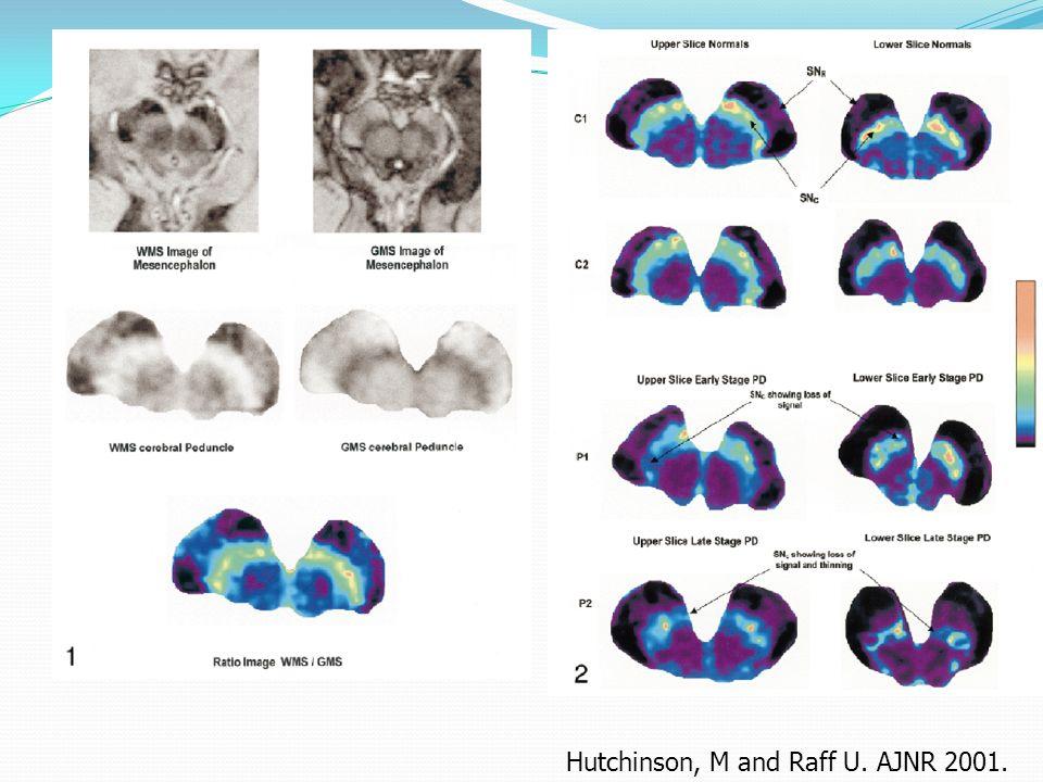 Diagnostic différentiel … Putamen normal dans la MPI Dans latrophie multisystématisée on peut observer : Hyposignal postéro-latéral du putamen (dépôt de fer) Hypersignal autour du putamen (gliose) Hypersignal pontine tegmentum l = hot cross bun ou œuf de paques.