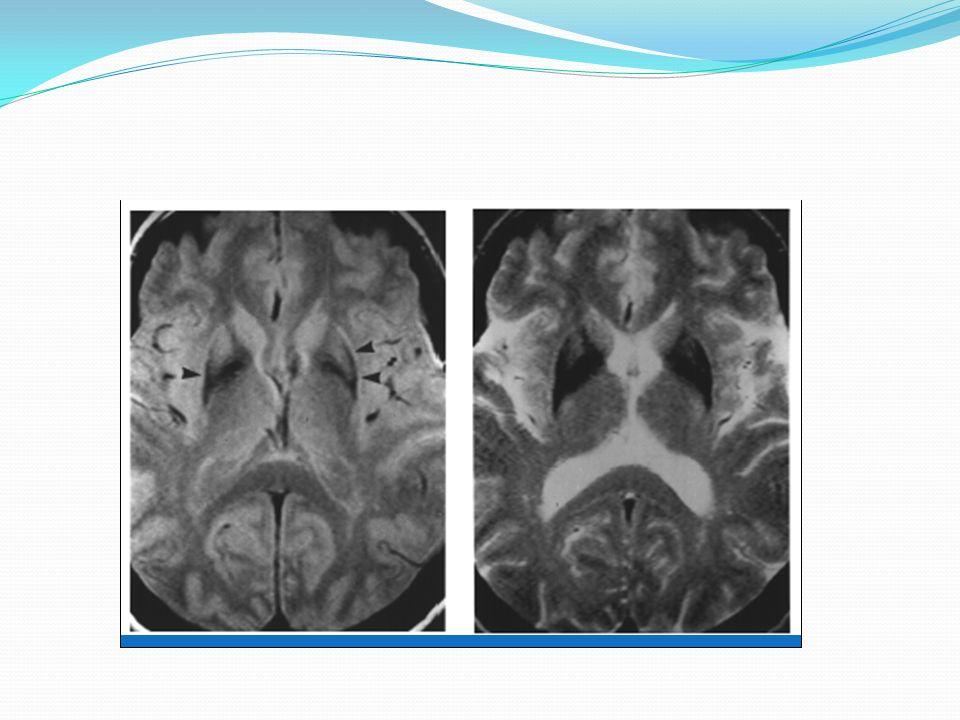Aspect IRM Cortex Noyaux caudés Putamen Aspect FP-CIT