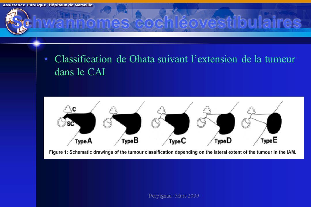 Perpignan - Mars 2009 Classification de Ohata suivant lextension de la tumeur dans le CAI Schwannomes cochléovestibulaires