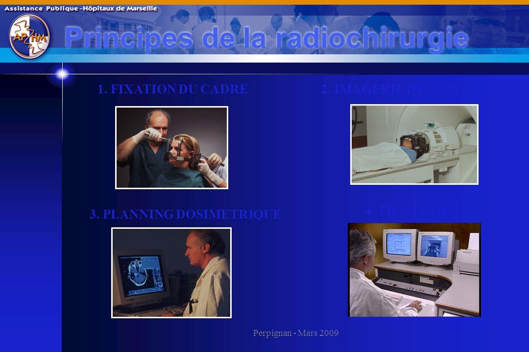 Perpignan - Mars 2009 Principes de la radiochirurgie 1. FIXATION DU CADRE2. IMAGERIE DE REPERAGE 3. PLANNING DOSIMETRIQUE 4. TRAITEMENT