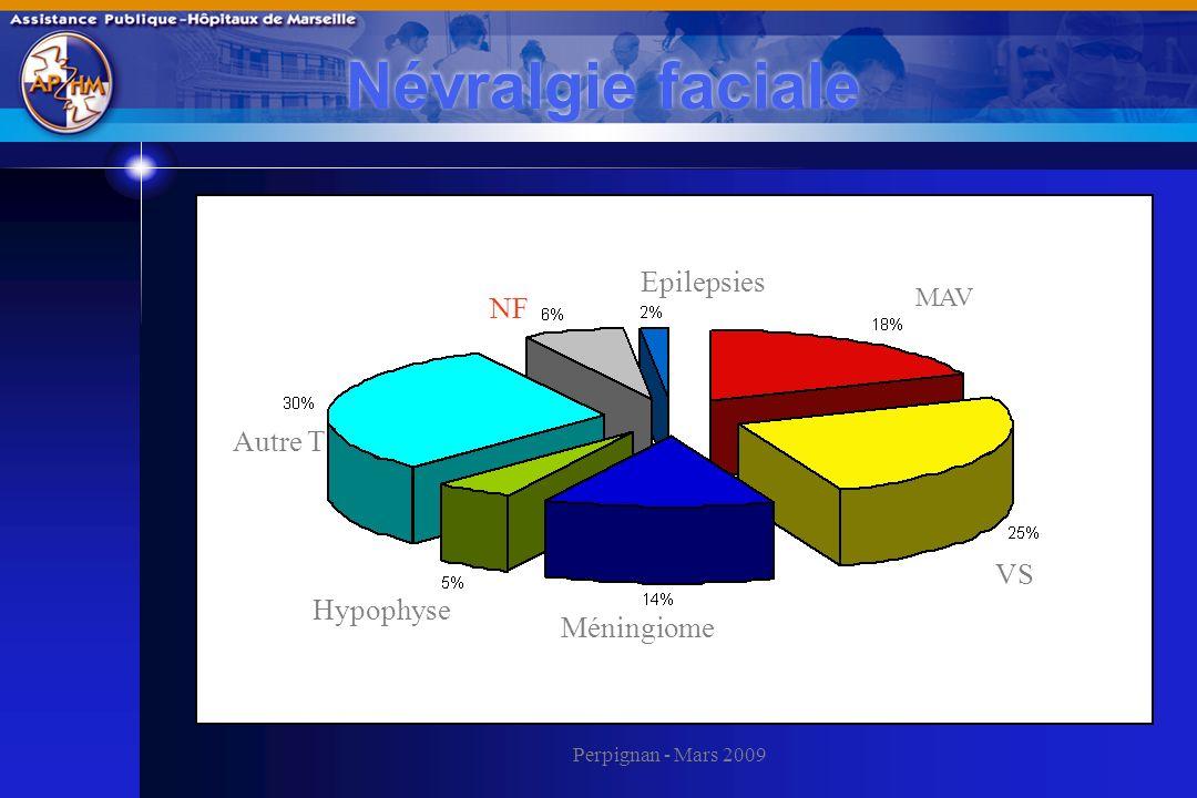 Perpignan - Mars 2009 Névralgie faciale VS MAV Autre T Méningiome Epilepsies NF Hypophyse