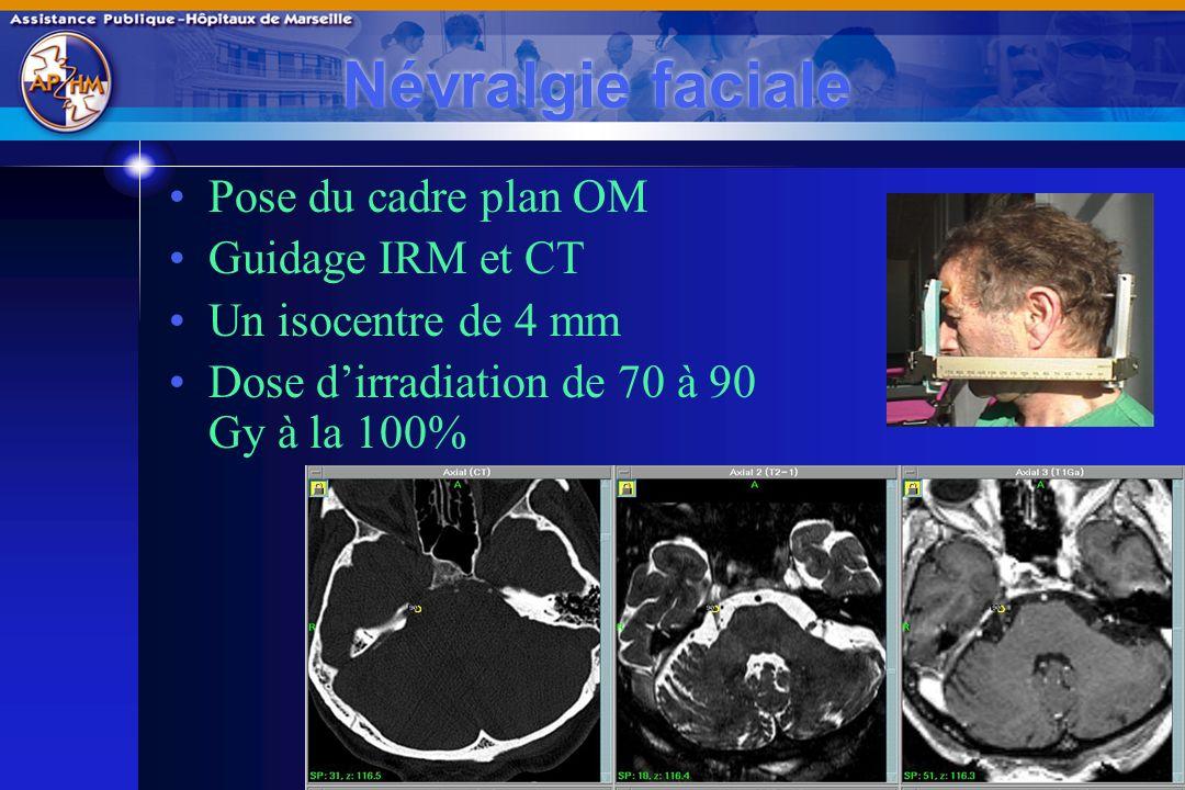 Perpignan - Mars 2009 Névralgie faciale Amélioration douloureuse initiale : 94% 83 % libre de douleur à la dernière visite Age < 60 ans favorable Complications : 10% 4 paresthésie 6 hypoesthésie