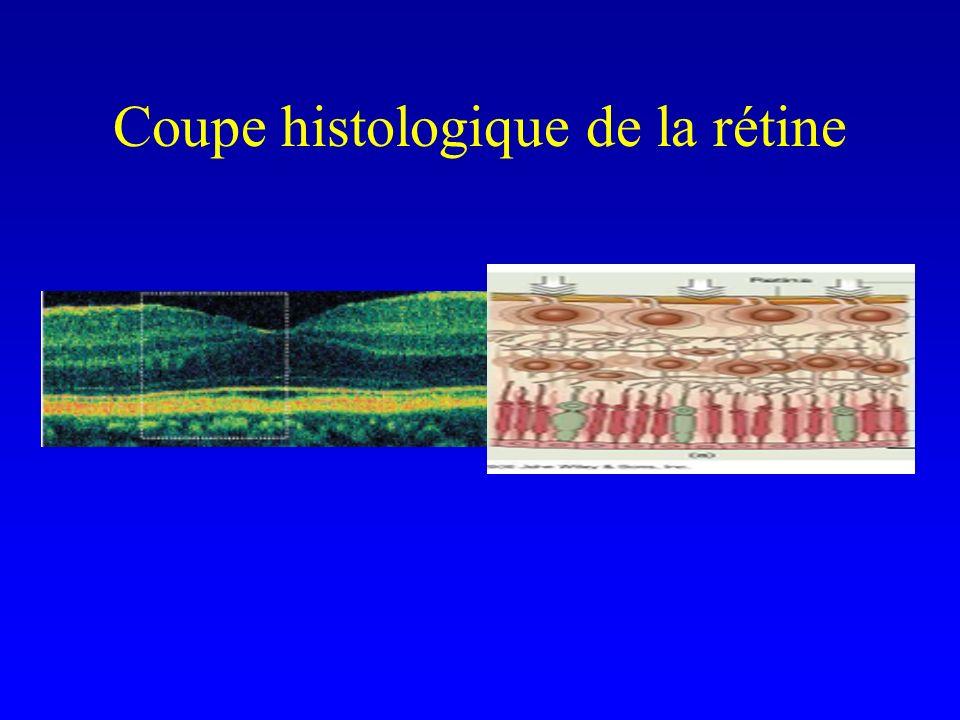 Coupe histologique de la rétine