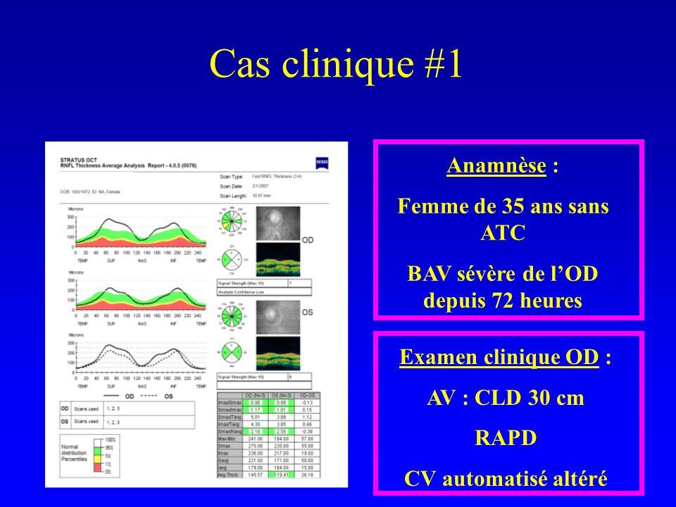 Cas clinique #1 Anamnèse : Femme de 35 ans sans ATC BAV sévère de lOD depuis 72 heures Examen clinique OD : AV : CLD 30 cm RAPD CV automatisé altéré