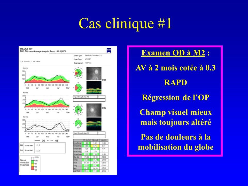Cas clinique #1 Examen OD à M2 : AV à 2 mois cotée à 0.3 RAPD Régression de lOP Champ visuel mieux mais toujours altéré Pas de douleurs à la mobilisation du globe