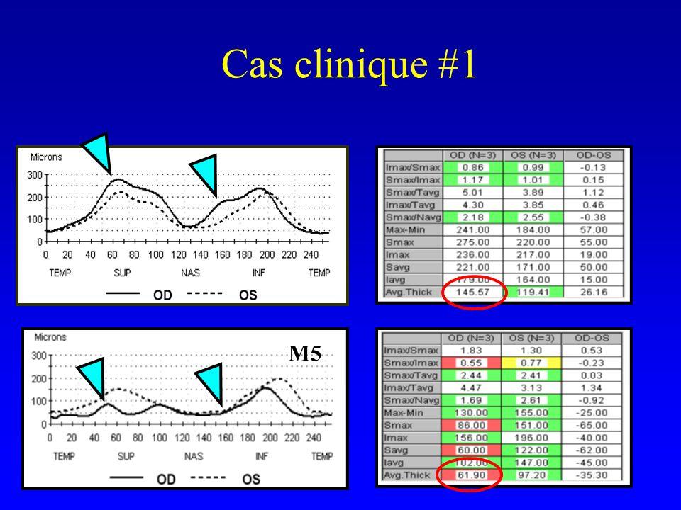 Cas clinique #1 M5