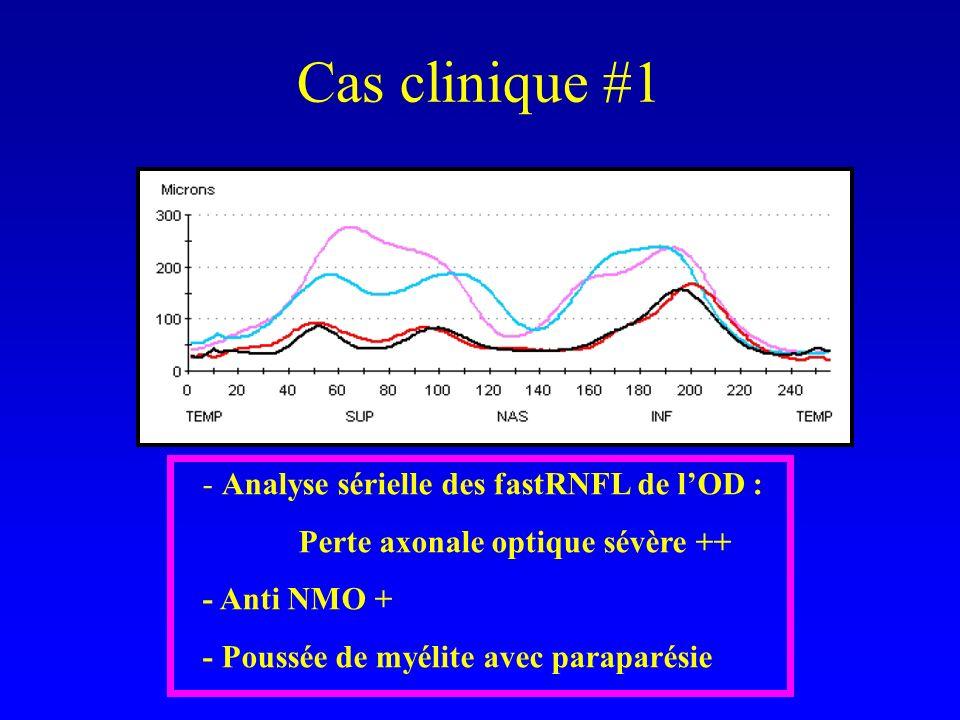 Cas clinique #1 - Analyse sérielle des fastRNFL de lOD : Perte axonale optique sévère ++ - Anti NMO + - Poussée de myélite avec paraparésie